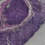 Update: 3D Digital Pathology at the Edge of a Knife