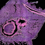 Conclusion: Mapping the Efficiencies of 3D Digital Pathology